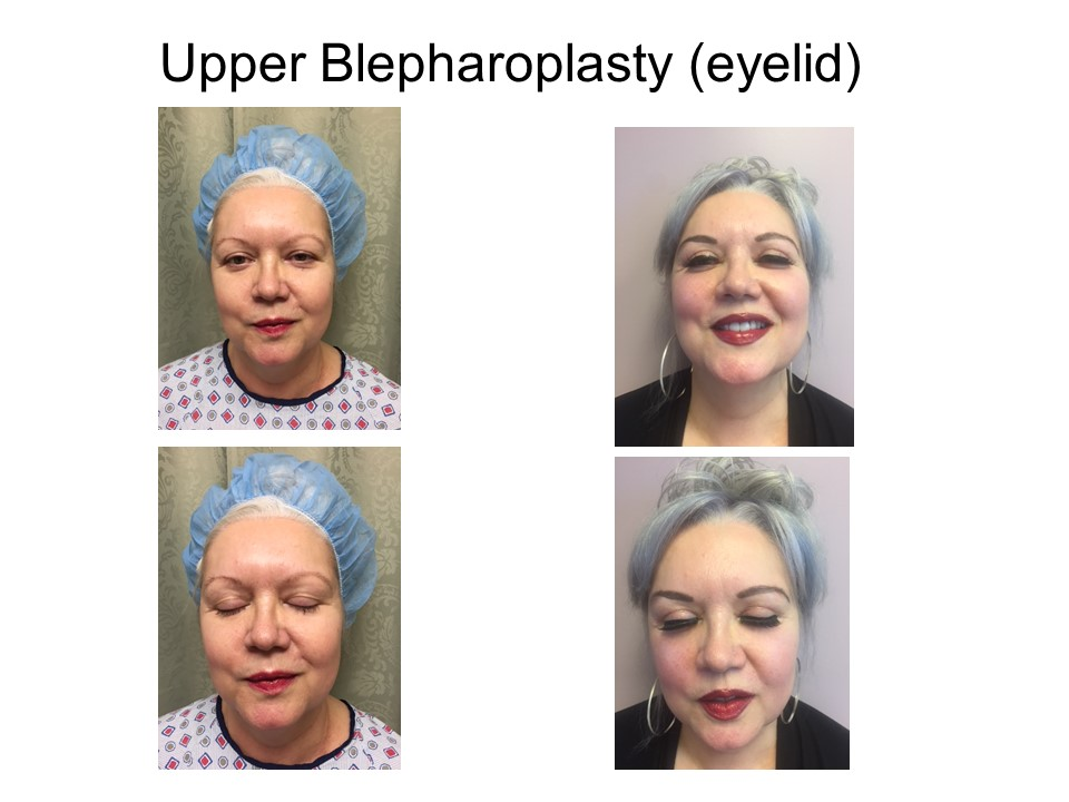 Upper Blepharoplasty - eyelid Khoury Plastic Surgery_HK